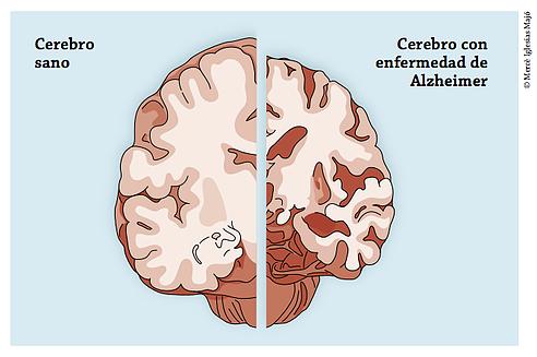 Envejecimiento activo: el cerebro - Residencia y centro de..